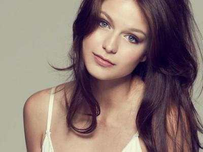 Una imagen de la actriz Melissa Benoist